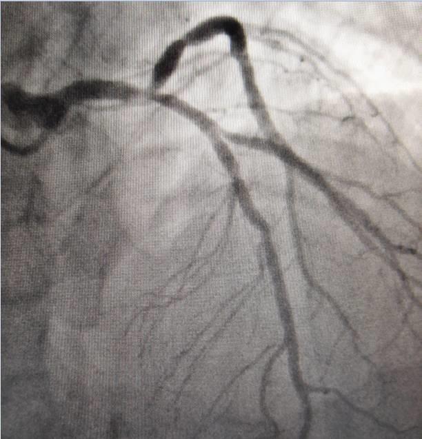 李瑞杰:中西医结合心脏康复的实践病例