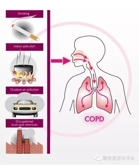 讲讲肺康复