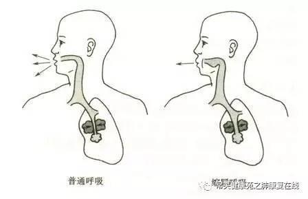 畅快呼吸改善肺功能|缩唇呼吸