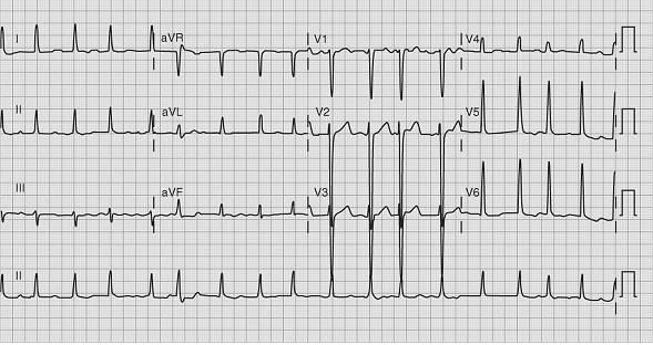 基层医师进阶宝典-如何控制房颤患者的心率和心律?